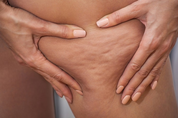 The Proven Secret to Winning Your Battle with Cellulite