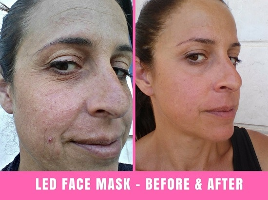 project e led therapy mask before and after