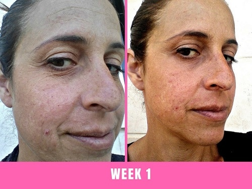 week 1 led facial at home