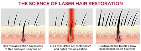 how laser regrows hair