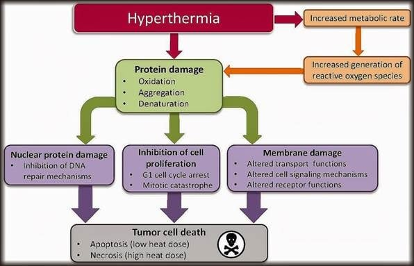 hyperthermia for cancer