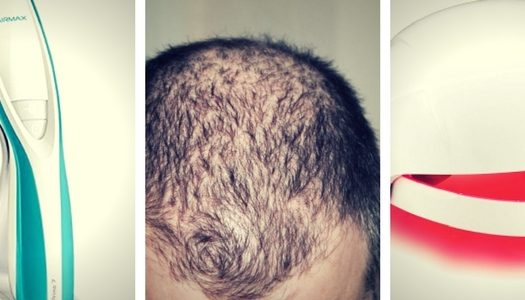 Laser Helmets vs. Laser Combs: What's BEST for Hair Regrowth?