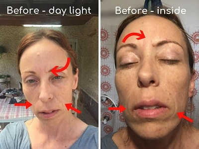 I Tried The Aduro Led Mask For 30 Days Review Before