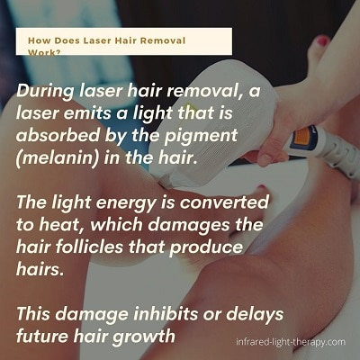 how does laser hair removal for dark skin work