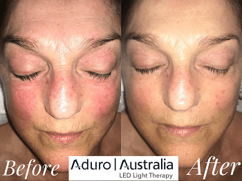 red light therapy for rosacea before and after